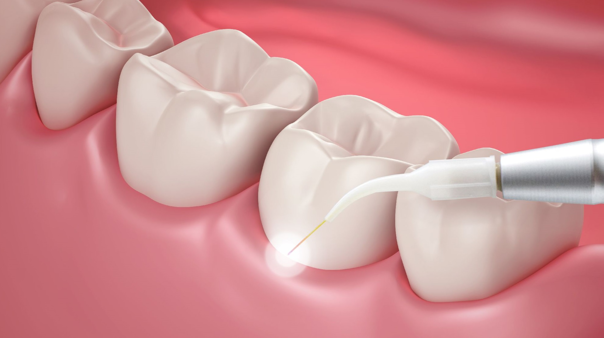 periodontal treatments long island